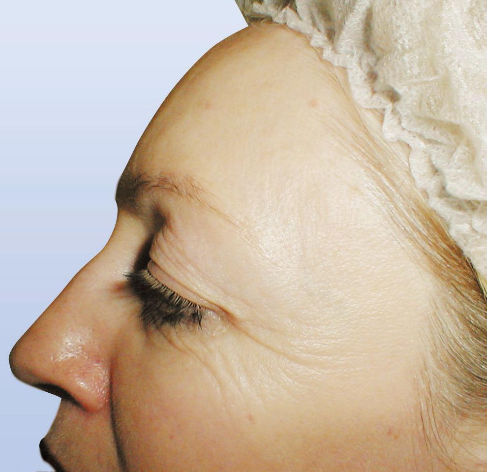 Imagen recogida en bellezayperfumes.wordpress.com.Tratamiento bioquántica para patas de gallo. ANTES.